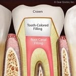 root-canal-scoop