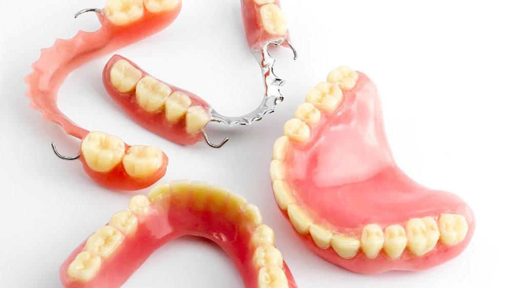 Why-Patients-Request-a-Full-or-Partial-Denture